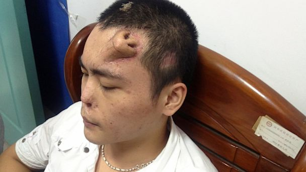 Doctors Grow Nose on Man's Forehead - ABC News